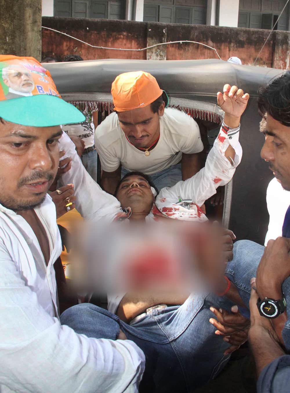 A man injured in bomb blasts is brought for treatment at the government medical college hospital in Patna.