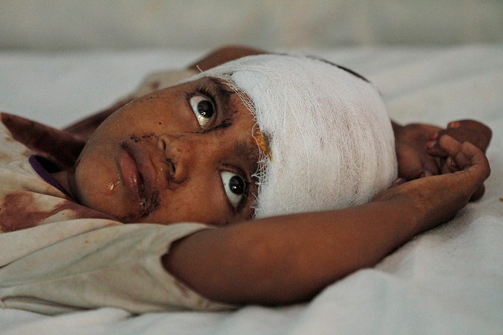 Mehrana, a 6-year-old girl injured in communal clashes, gets treatment at a district hospital in Muzaffarnagar.