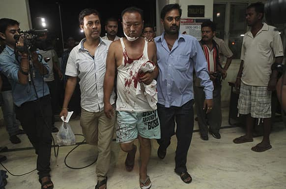 A man injured in a grenade blast is brought to the Medical College hospital in Gauhati. At least 15 people were injured, two of them seriously, in the incident which occurred near a railway station here according to the Press Trust of India.