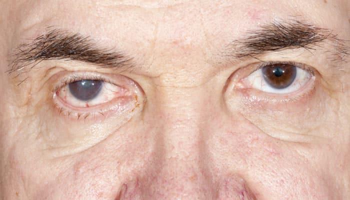 Blind Spot In Human Eye Can Be Shrunk Health News