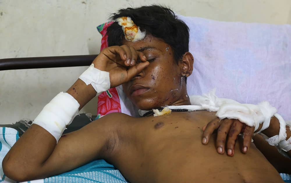 An injured boy rests on a bed at the Kollam district hospital after a massive fire broke out during a fireworks display at the Puttingal temple complex in Paravoor village, Kollam district, southern Kerala state.
