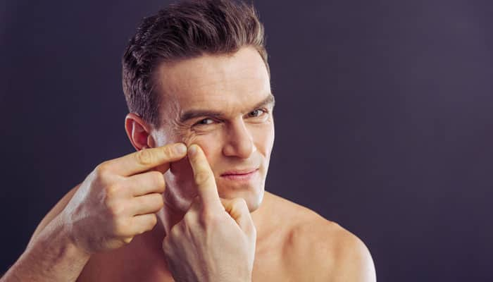 Skincare tips for men to get rid of pimples