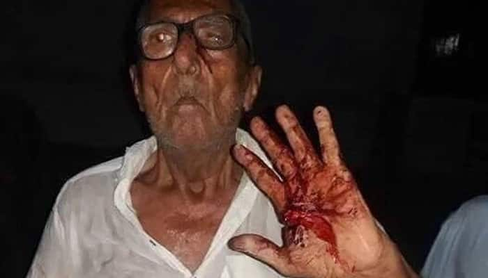 DISTURBING PIC: Hindu man brutally tortured in Pakistan for selling edibles before Iftar