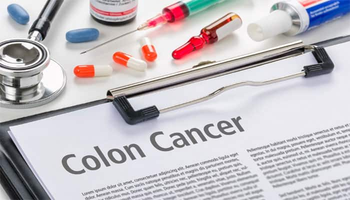 Researchers Identify Rare Form Of Hereditary Colon Cancer Health News Zee News