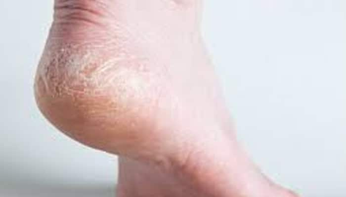 Winter foot care: Five easy tips for cracked heels!