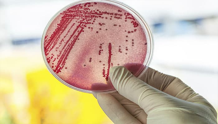Sepsis: Inexpensive prevention technique discovered by US-based Odisha scientist