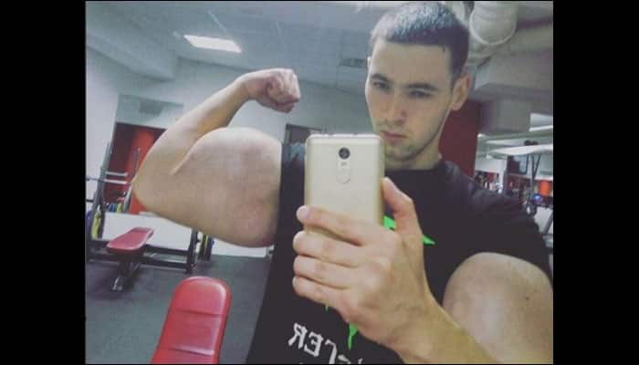 Man with 24-INCH biceps TROLLED over latest leg procedure