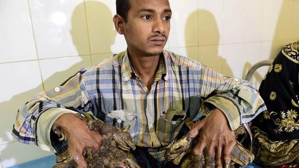 Despite 25 surgeries, 'tree-man' in Bangladesh still hasn't been cured