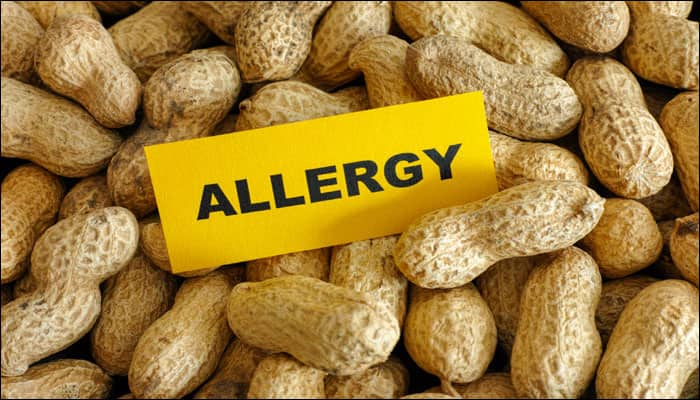 Parents of kids with food allergies aren't very careful: Survey