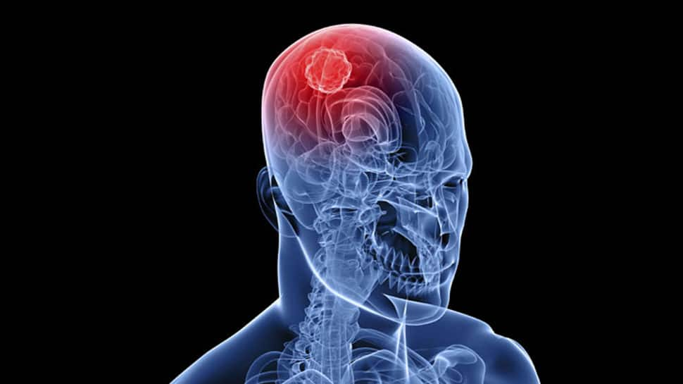 Mumbai doctors remove 1.870 kg brain tumour in 6-hour-long operation