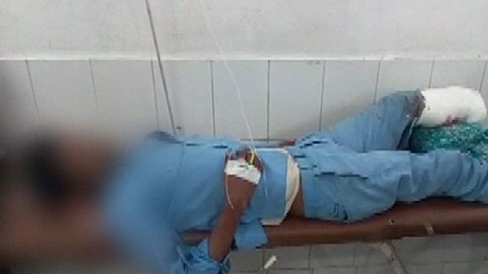 Two doctors suspended after accident victim's amputated leg used as pillow at Jhansi hospital