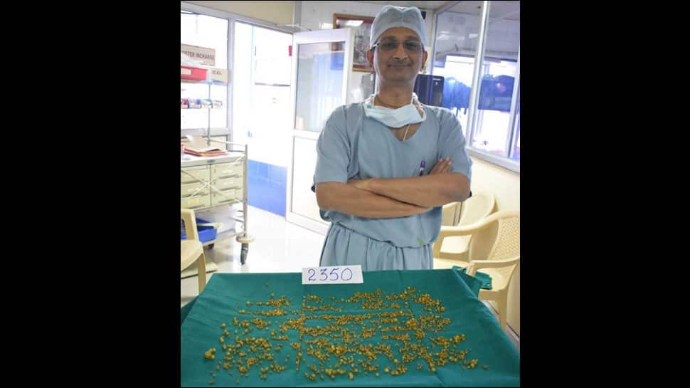 Mumbai doctors remove 2,350 stones from 50-year-old woman's gallbladder