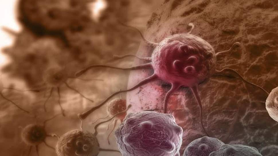 New biomarker helps identify cancer chemotherapy timing