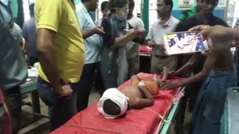 West Bengal: 3-year-old receives bullet injuries on head during clashes in Malda