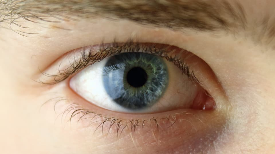 Researchers uncover genetic causes of eye disease