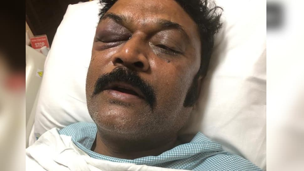 Karnataka brawl row: Congress MLA files FIR against party MLA Ganesh for assaulting him