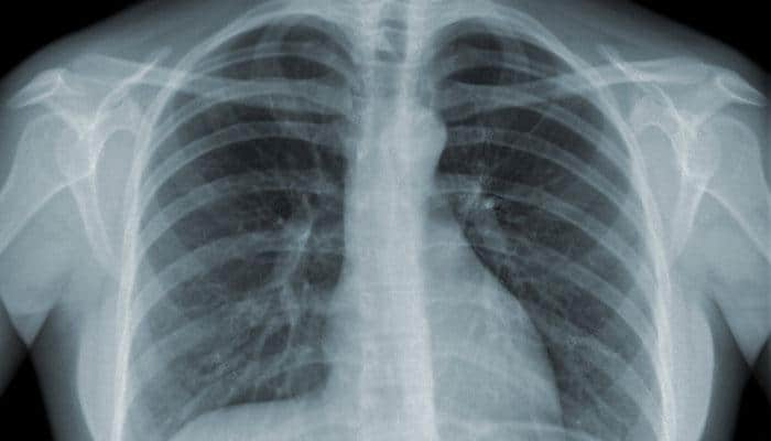 AI-based system to cut process time for abnormal chest X-rays