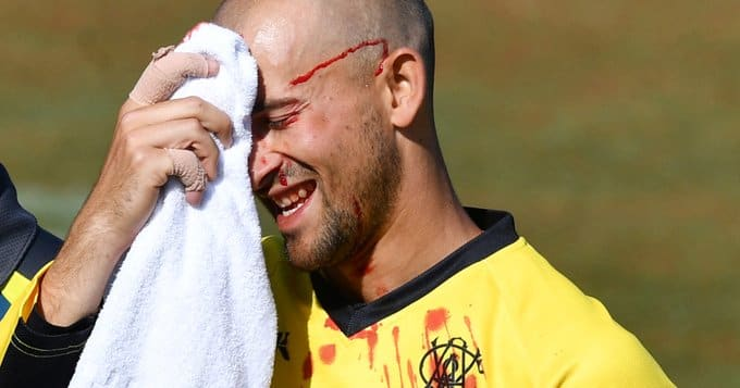 Ashton Agar left bloodied after dropping brother Wes' catch during Marsh Cup