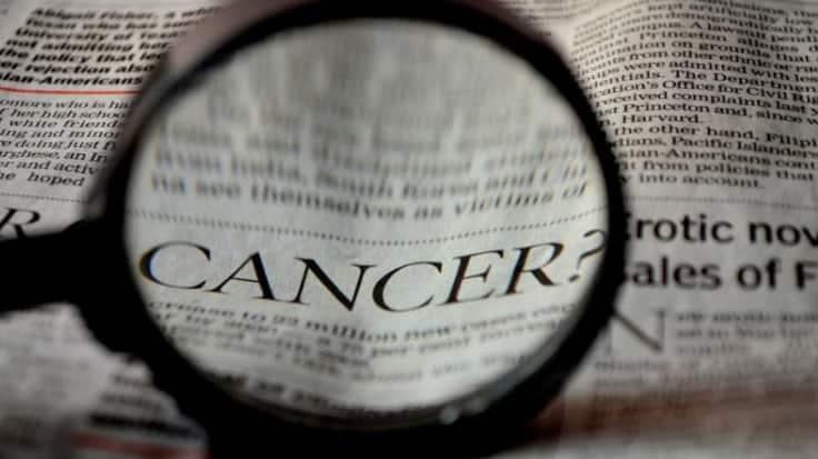 Glioblastoma: New drug targets for lethal brain cancer discovered