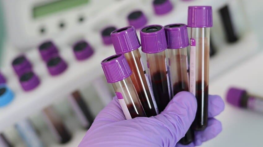 Indian-origin scientist develops paper-based test to detect COVID-19 in less than five minutes
