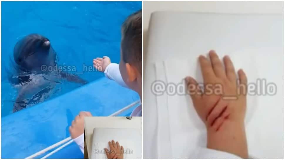 Terrifying! Dolphin bites little kid's hand, little boy gets three stitches