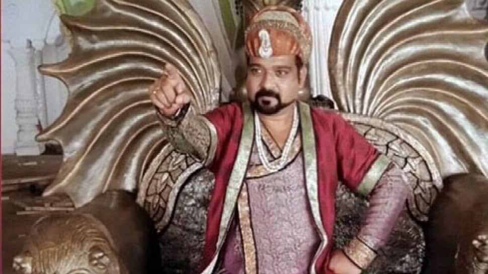 Jodha Akbar actor Lokendra Singh loses a leg due to high diabetes level