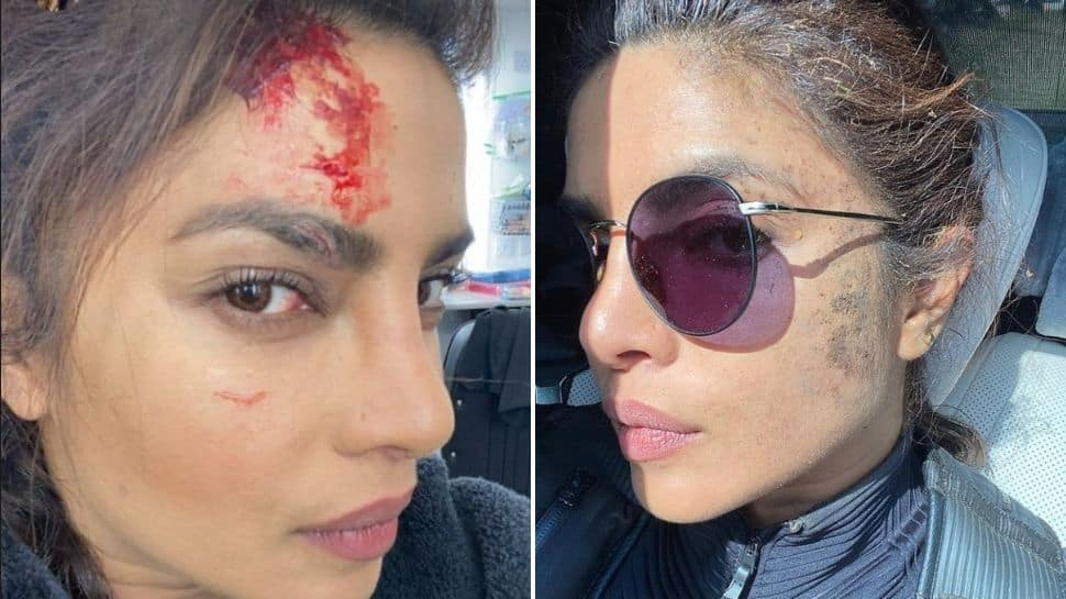 Priyanka Chopra gets wounded while shooting for Citadel – See pic