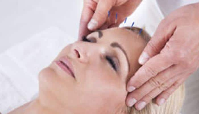 Acupuncture - Latest News on Acupuncture | Read Breaking