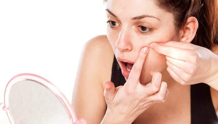 Are stubborn acne marks troubling you? Check out these home remedies