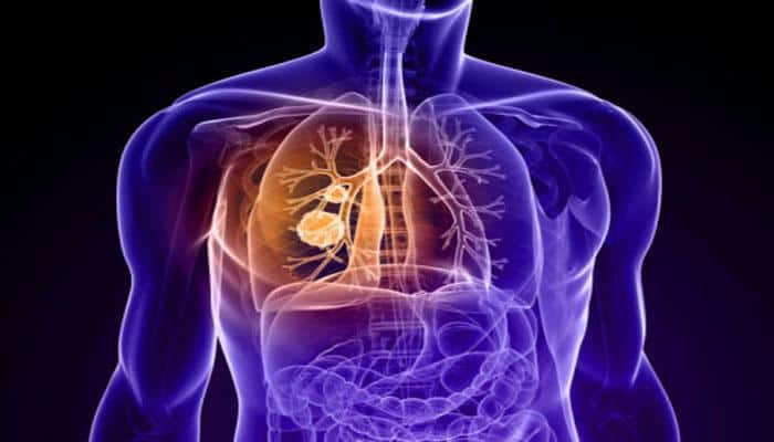 Lung cancer: Thousands of Australians to undergo regular chest scans for early detection