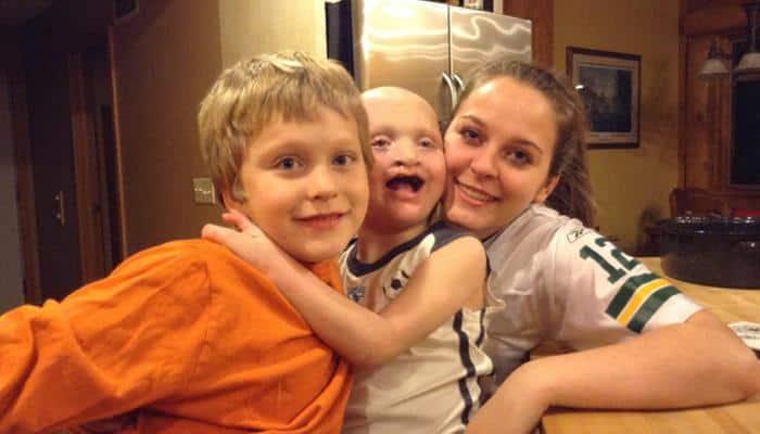 Ectrodactyly ectodermal dysplasia-cleft syndrome EEC