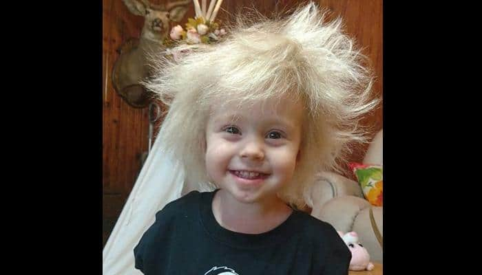 Meet this two-and-a-half year old girl with Albert Einstein hair!