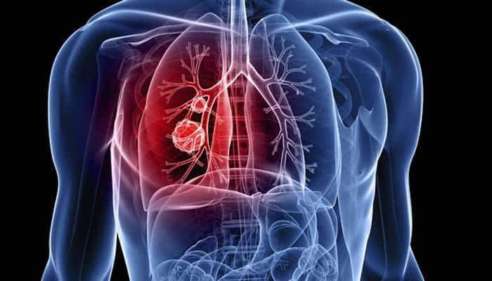 Gold nanoparticles maybe useful in treating lung cancer: Study