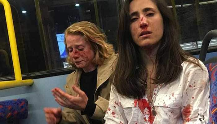Two women beaten, robbed by gang of men in UK 'for refusing to kiss'