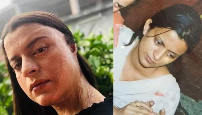 Rangoli Chandel shares her heart-warming acid attack ordeal on Twitter