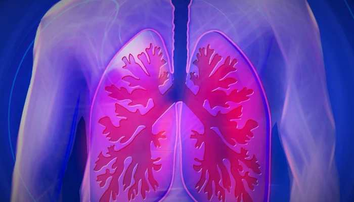 Severely damaged human lungs can be recovered by attaching them to pigs, claim researchers