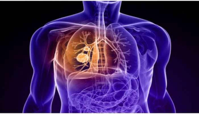 Indian researchers develop diagnostic therapy for lung cancer