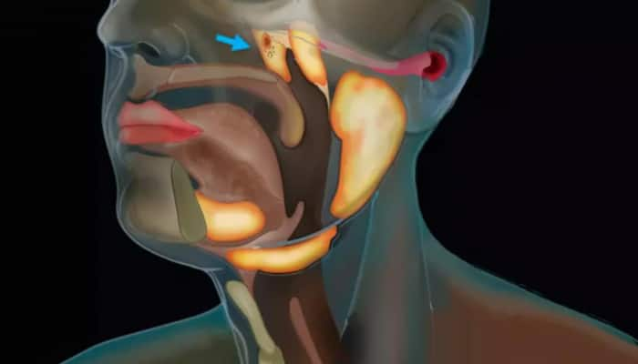 Researchers find new organ in throat that may help in treatment of cancer - Details here