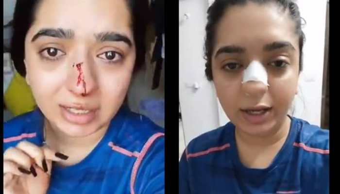 Zomato delivery executive punches Bengaluru woman after altercation for THIS reason