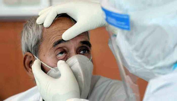 30 black fungus infected victims lose vision in one eye in Tamil Nadu